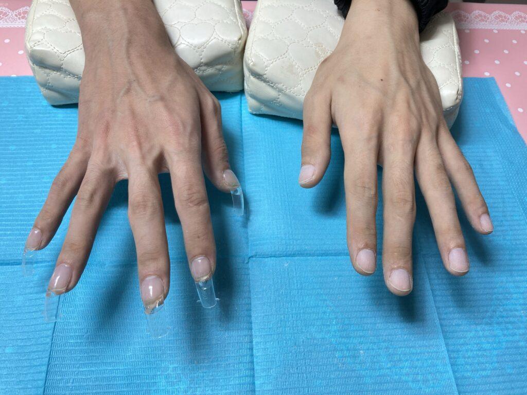 【ジェルネイル】人工爪で長さ出し男性ネイル【爪で健康管理】